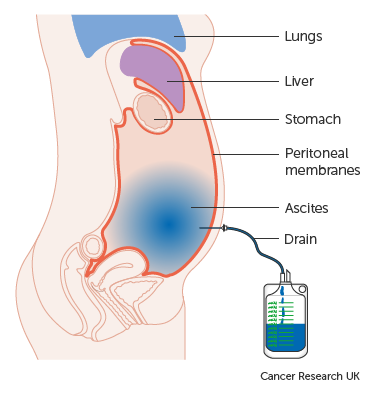peritoneal cancer causes
