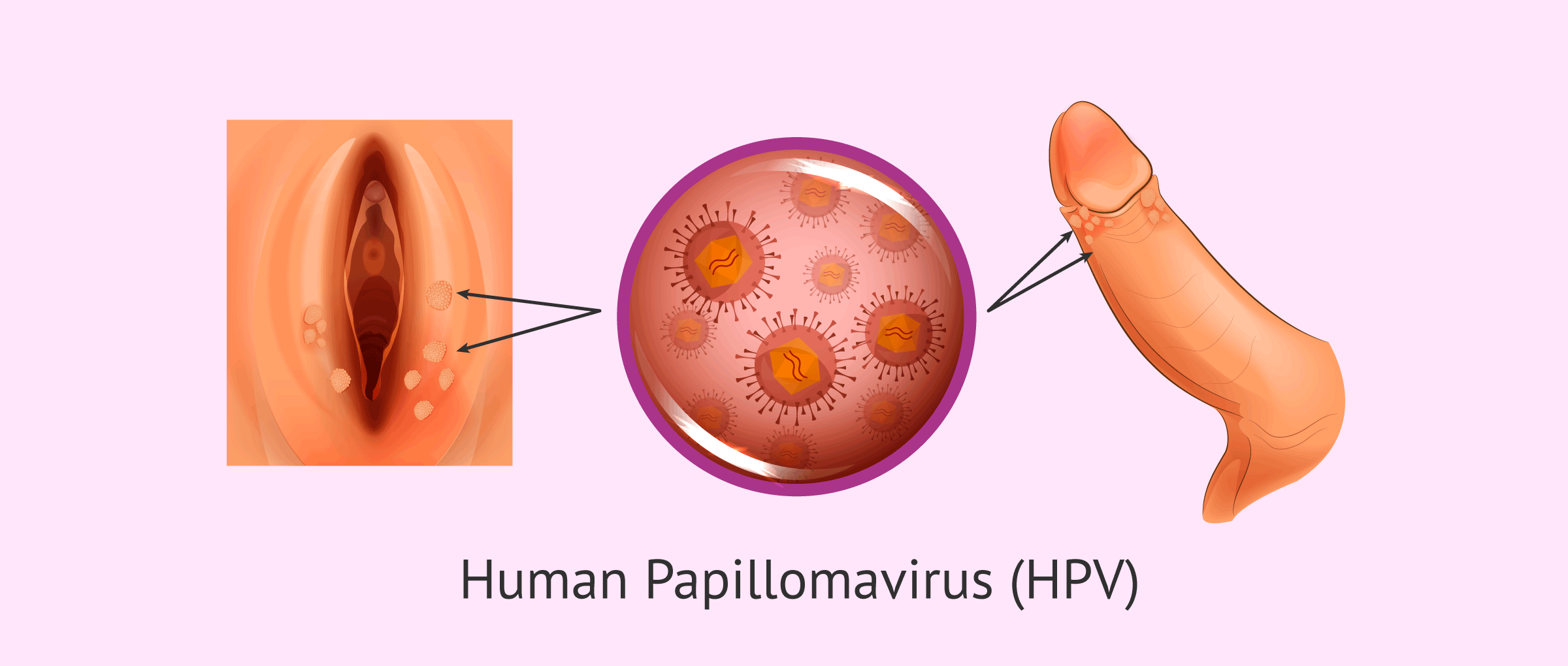 Hpv virus flu like symptoms, Translation of