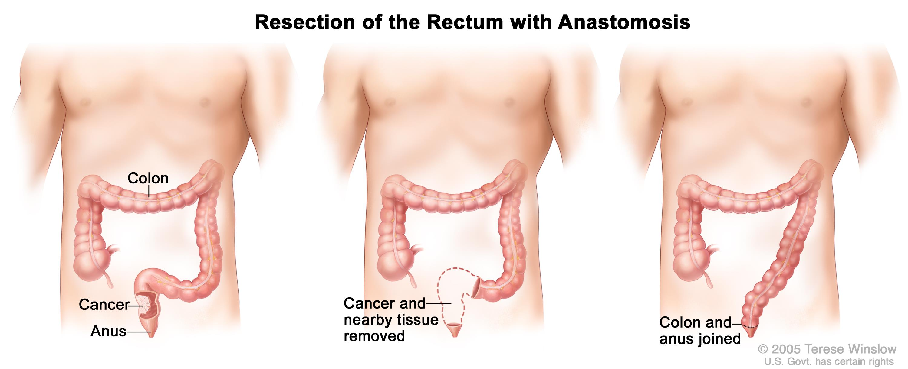 rectal cancer operation