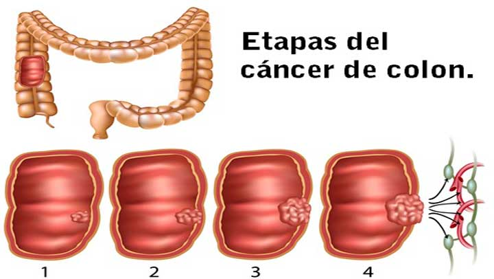 Cancer pulmonar etapas