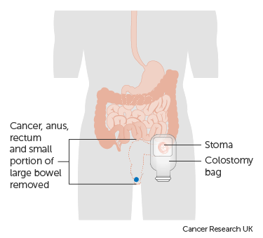 rectal cancer operation)