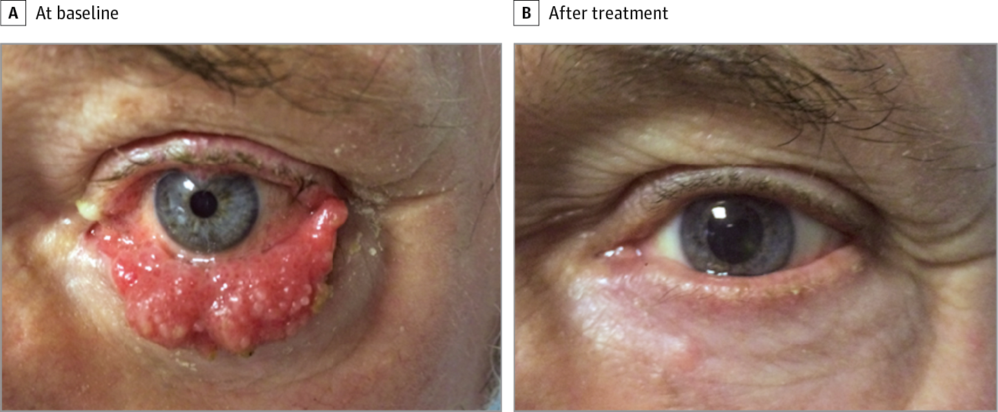 Squamous cell papilloma removal