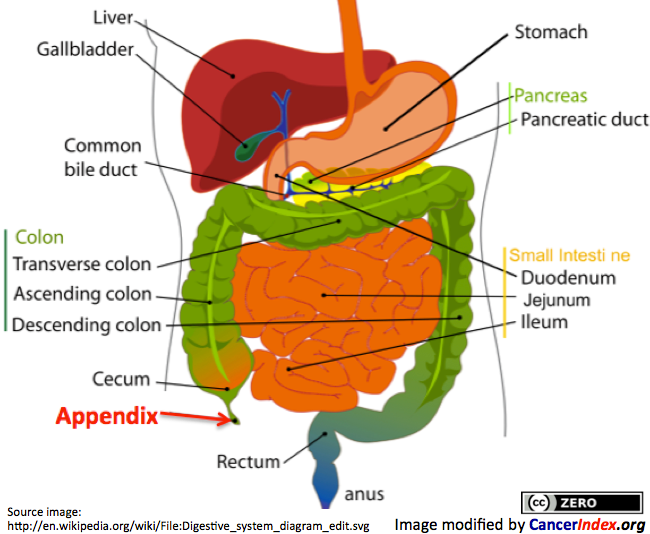 peritoneal cancer from appendix)