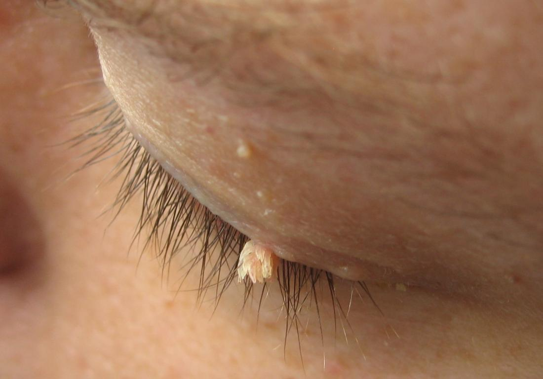 papilloma on face removal)