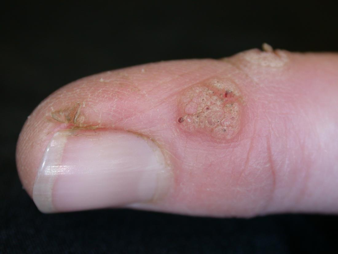 Warts on hands cryotherapy.