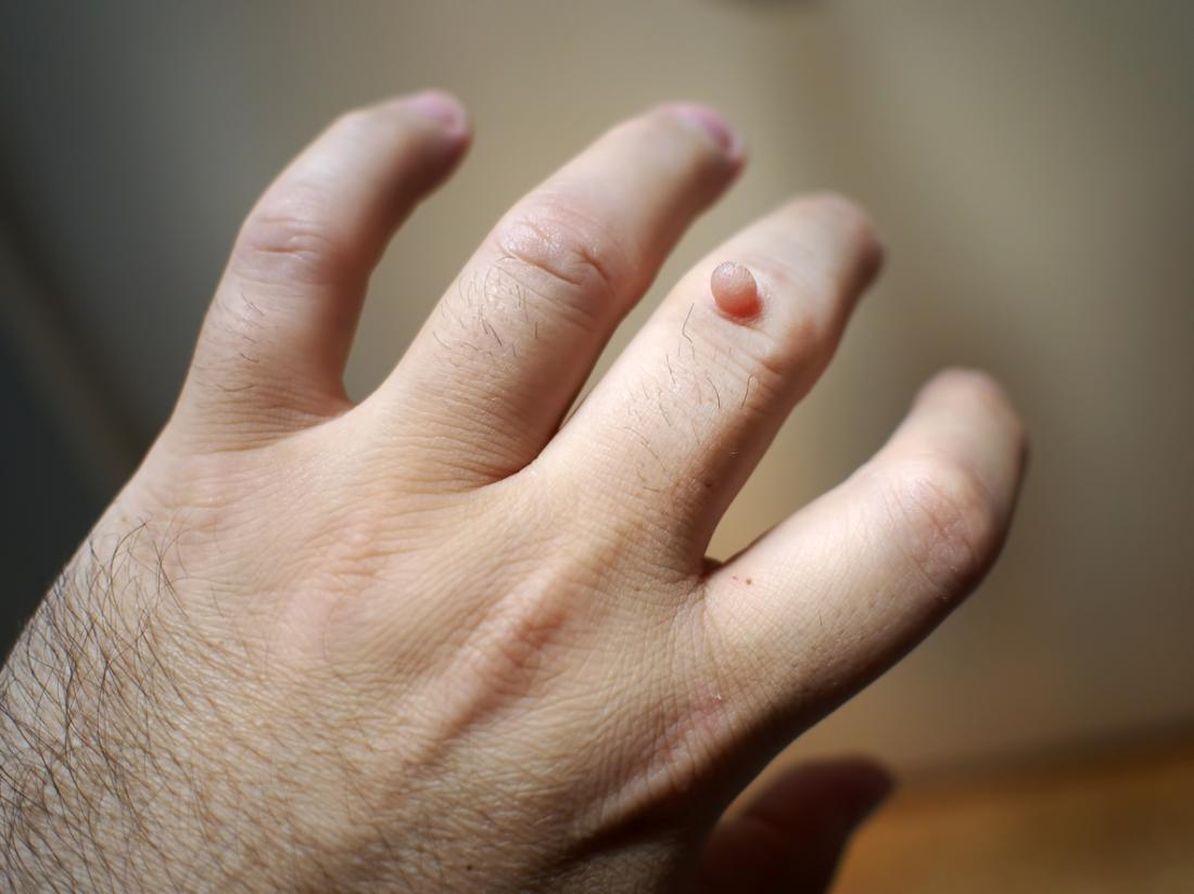 warts on hands all of a sudden)