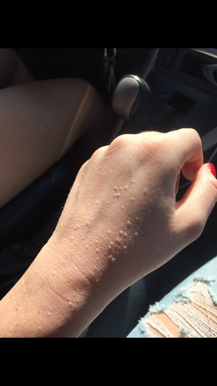 small warts on hands reddit