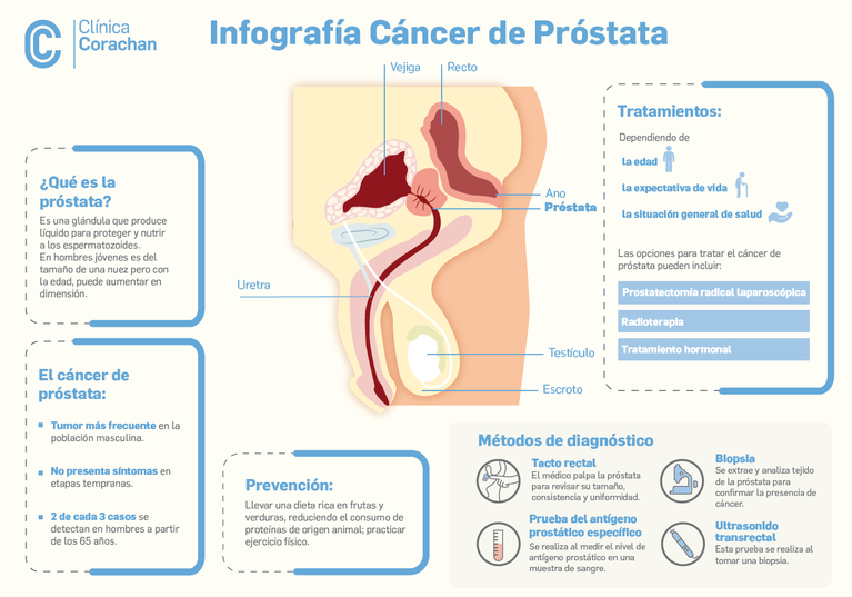 cancer de prostata que es