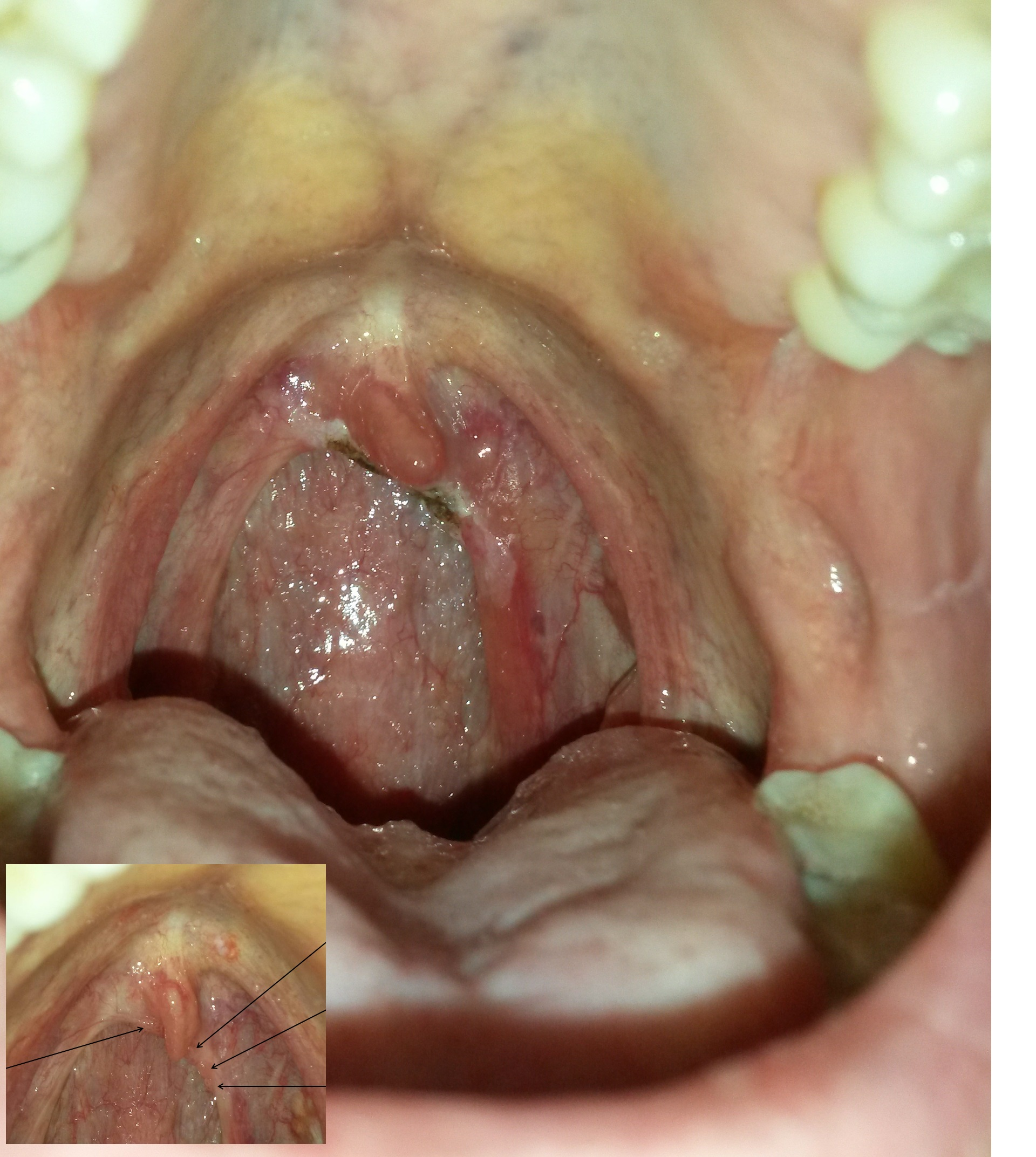 Hpv warts throat pictures