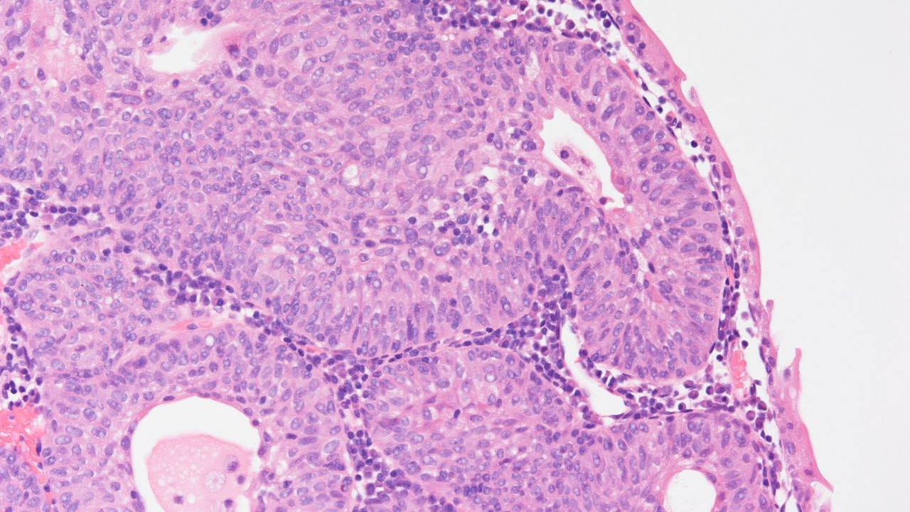 inverted urothelial papilloma pathology