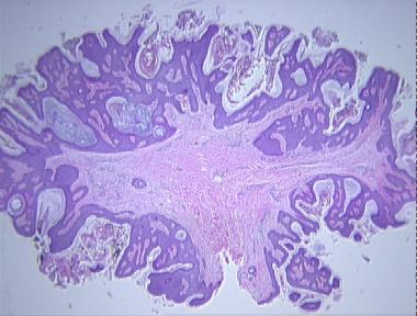 what is fibroepithelial papilloma