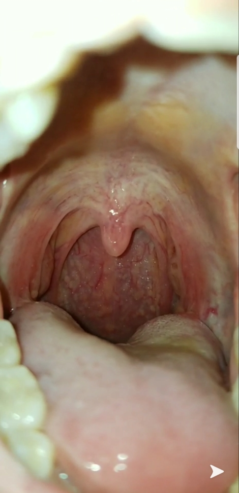 hpv warts throat