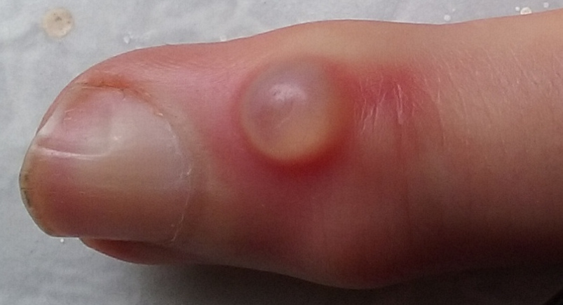 Wart on foot infected, Cancer benign meaning