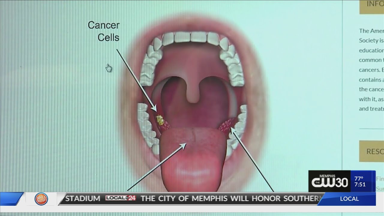 hpv throat cancer symptoms