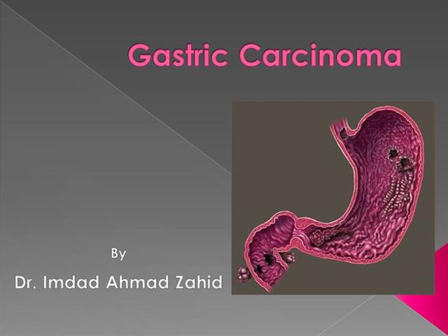 CANCERUL GASTRIC dr. D. Andronic.