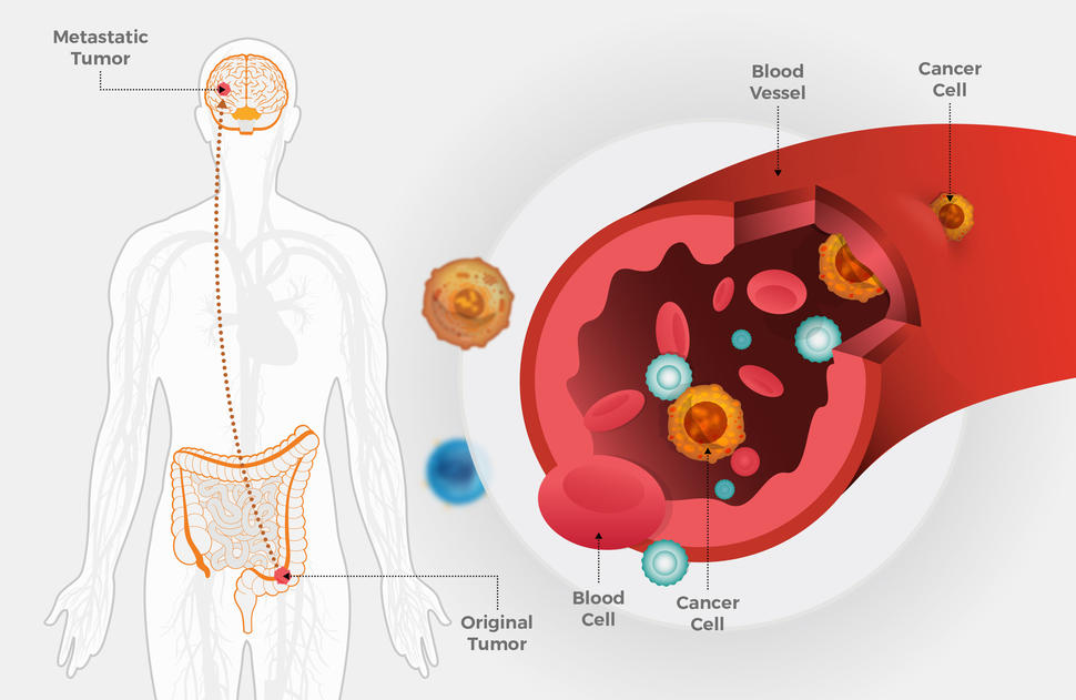metastatic cancer from colon to liver