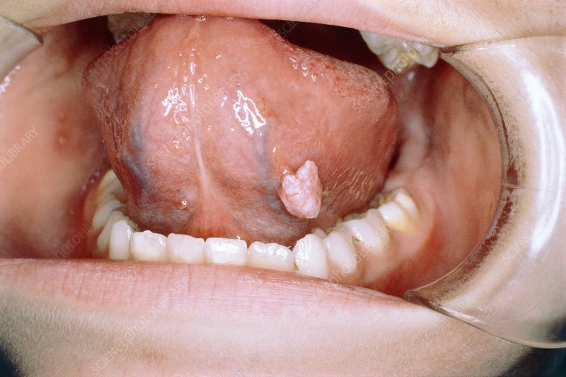 wart on the tongue)