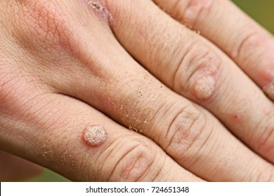 hpv from warts on hands)