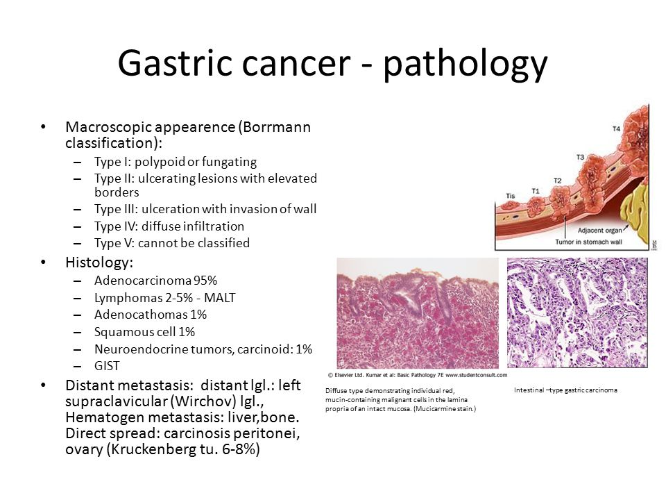 gastric cancer histological types)