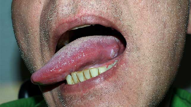 hpv and cancer of the tongue)