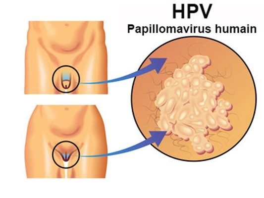 papillomavirus traitement chirurgical