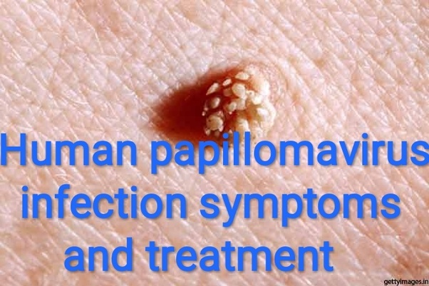 papilloma virus infection squamous cell