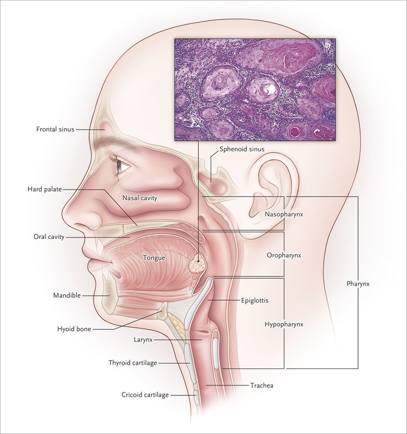 hpv infection head and neck cancer)