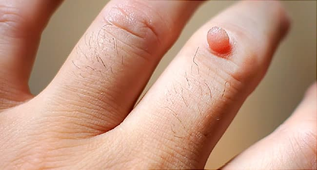 wart on hands removal)