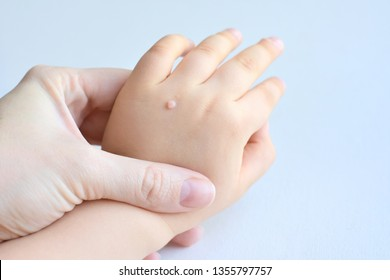 Warts on hands causes, Condylomata (Genital Warts; HPV) | Cabinet ginecologie
