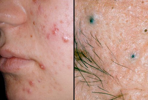 hpv face pimples)