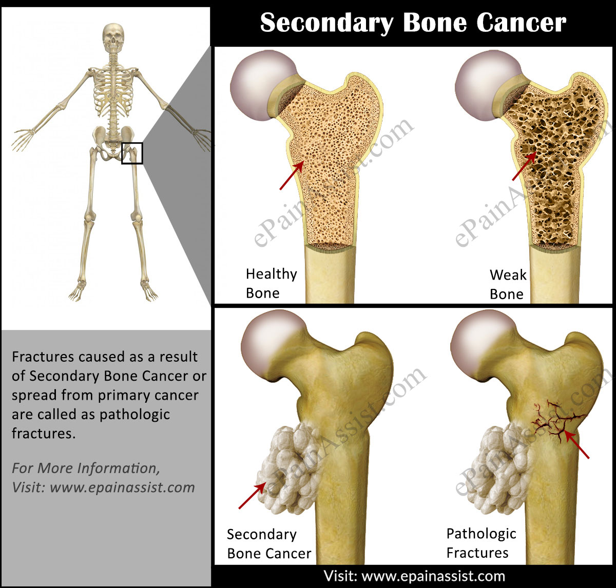 metastatic cancer bone pain