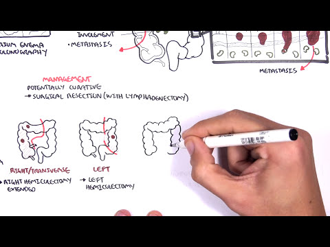 rectal cancer usmle)