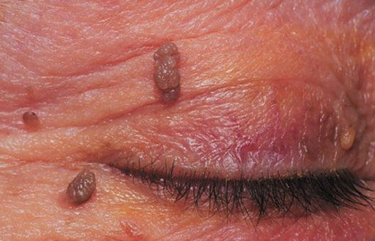 Intraductal papilloma with dcis treatment