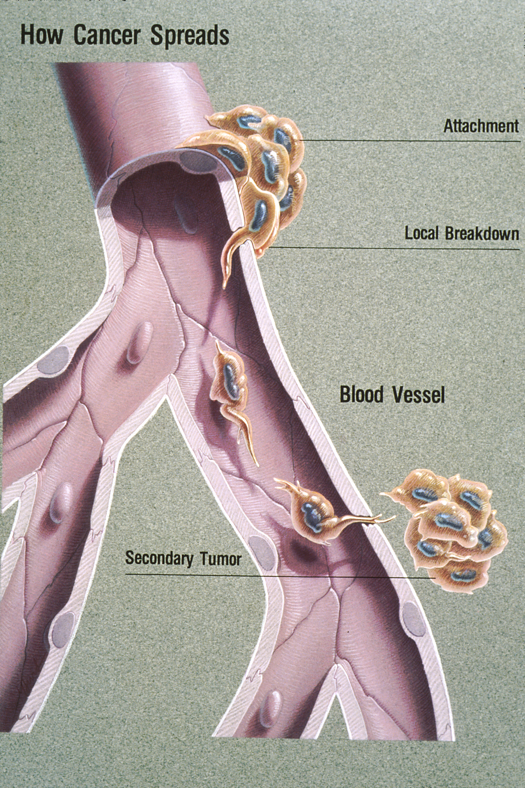 metastatic cancer no symptoms)