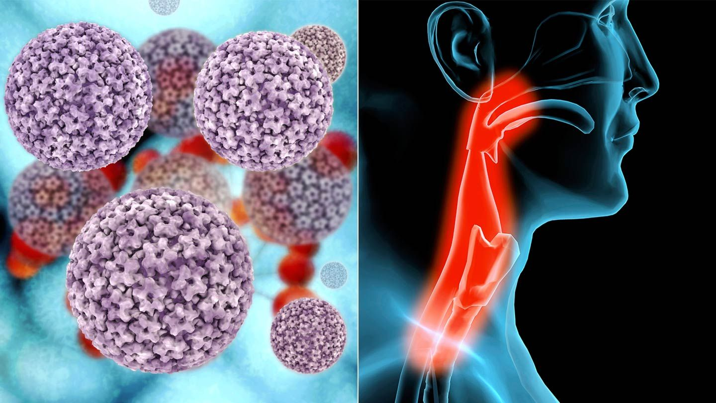 Hpv virus in throat cancer