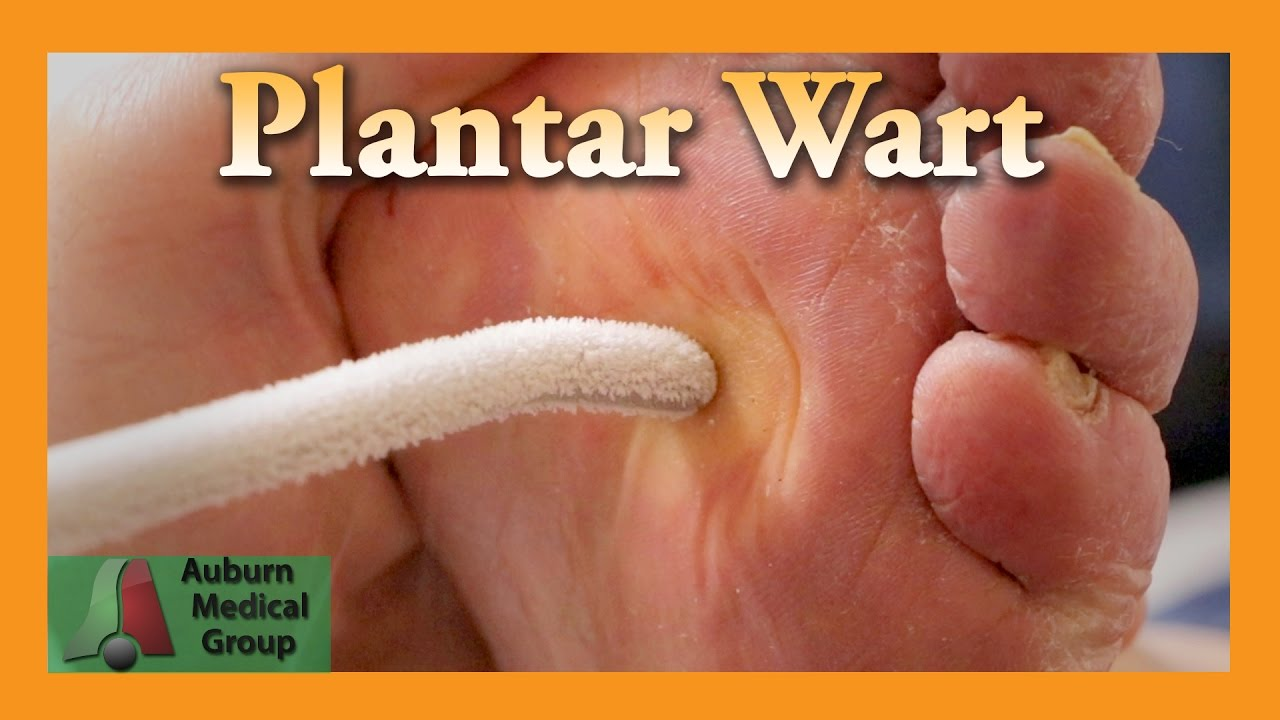 Plantar wart home remedy treatment