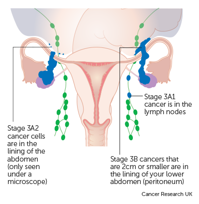 Ovarian cancer prognosis stage 3,
