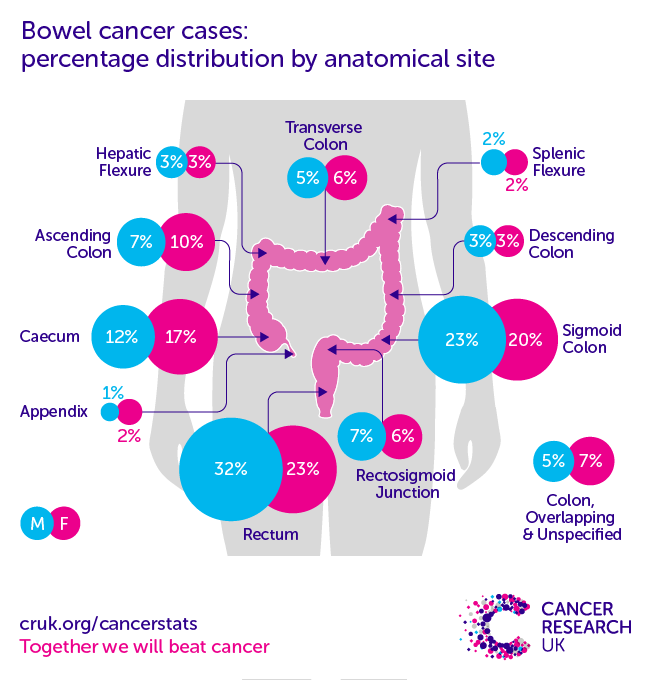 rectal cancer prevalence abdominal cancer mean