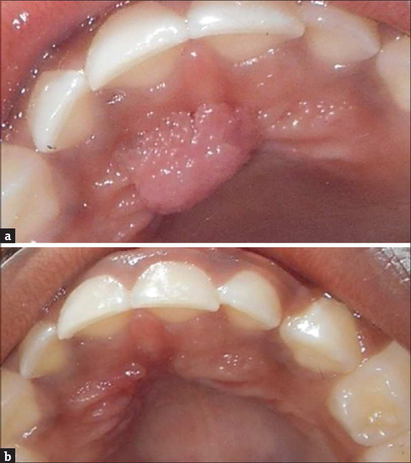 papilloma of mouth