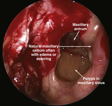 difference between inverted papilloma and polyp)