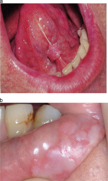 confluent and reticulated papillomatosis symptoms