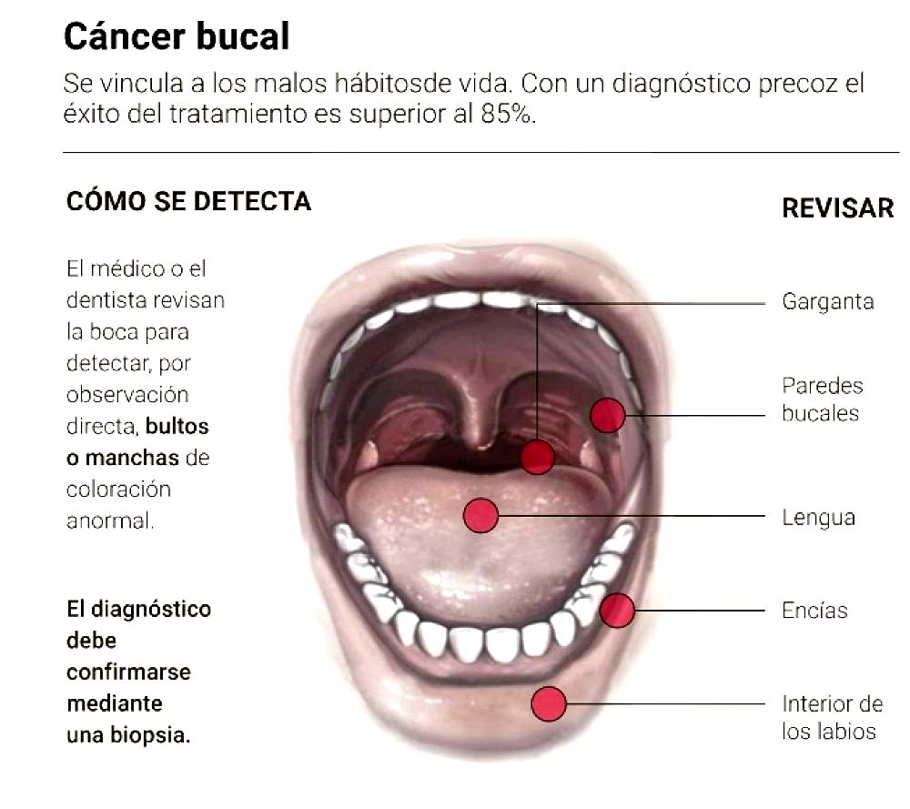 cancer bucal imagenes