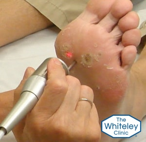 verruca foot disease treatment