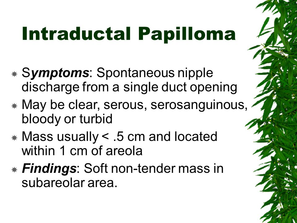 Intraductal papilloma in breast
