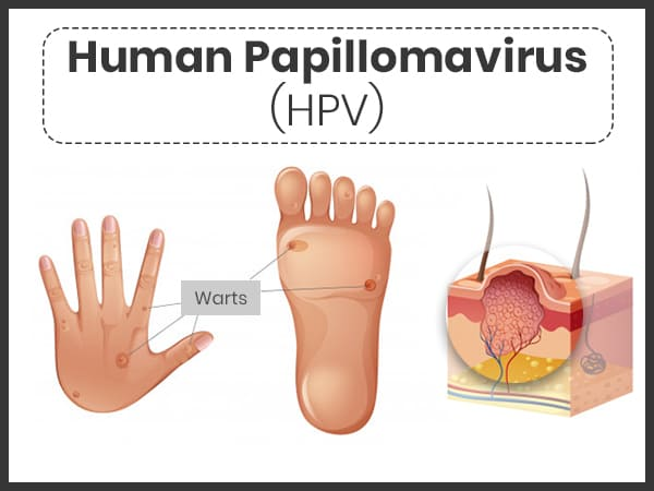 human papillomavirus causes and effects