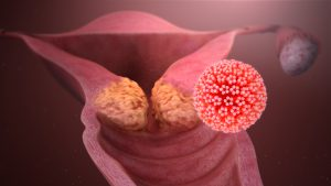 reason for hpv infection