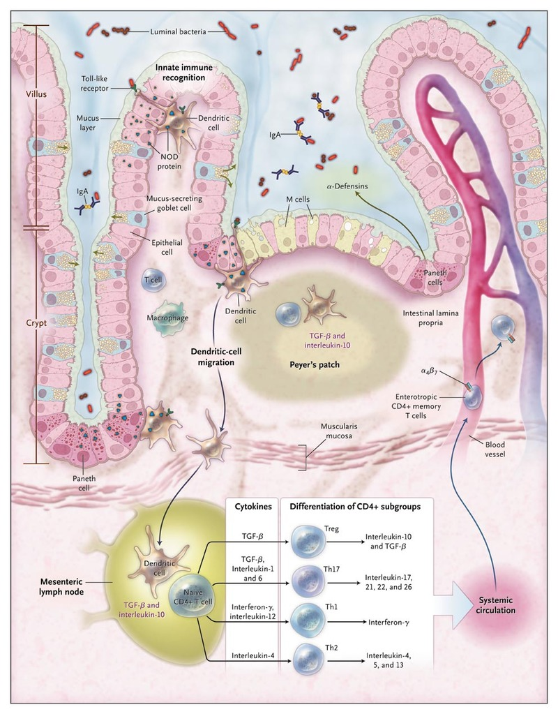 inflammatory bowel diseases helminth therapy)