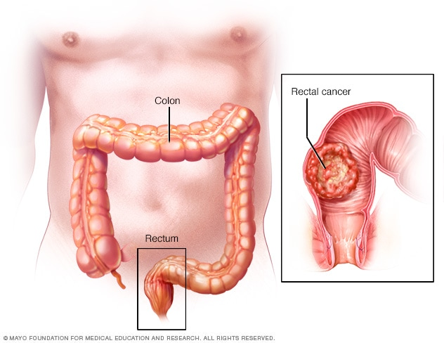 rectal cancer and colon cancer