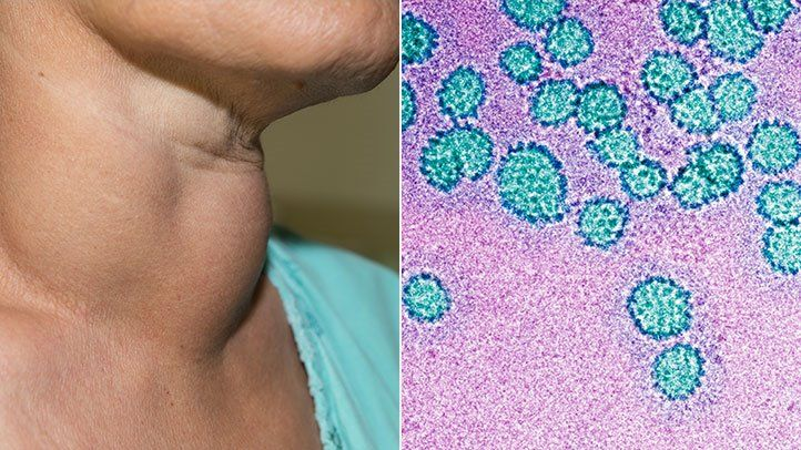 hpv related neck cancer