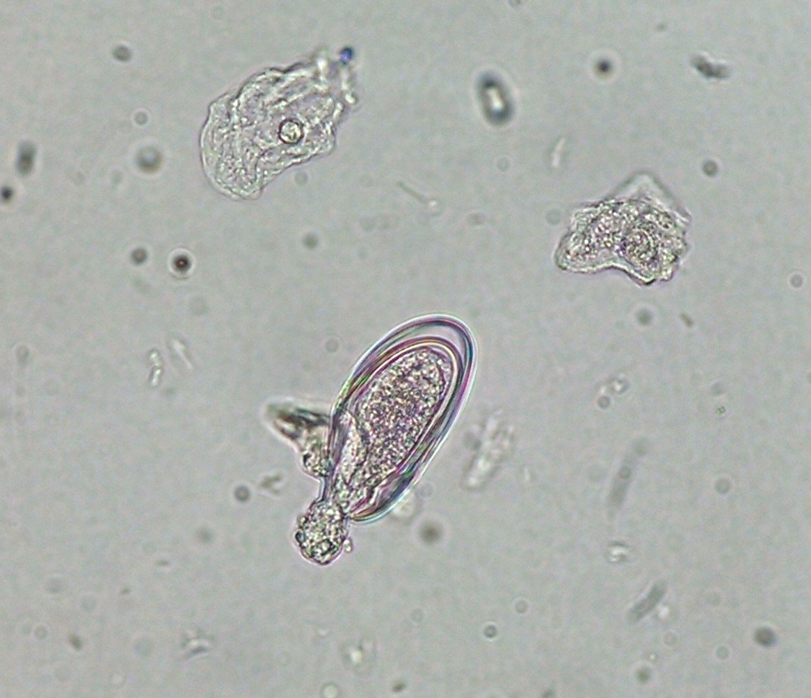 enterobius vermicularis in urine